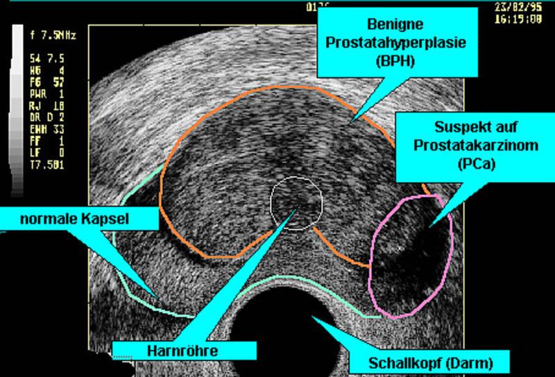 prostata normale größe cm