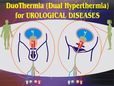 hyperthermie prostata